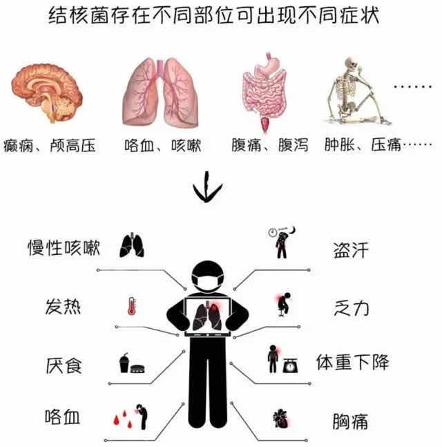 肺症状部位